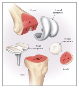 required elements in knee arthroplasty