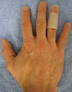 treating dislocated finger