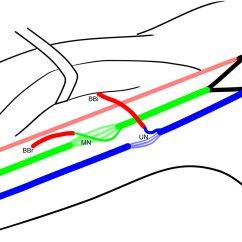 Ulnar Nerve Diagram Tornado Supercell Transfer For Restoration Of Elbow Flexion In Upper