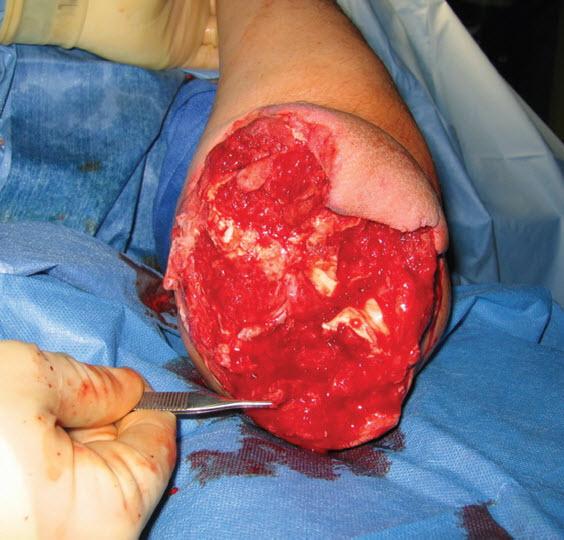 Gunshot Wound with Loss of the Elbow  OrthopaedicsOne Cases  OrthopaedicsOne