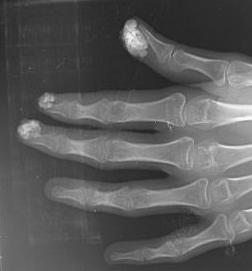 Tumoral Calicification of the Fingers  OrthopaedicsOne Cases  OrthopaedicsOne