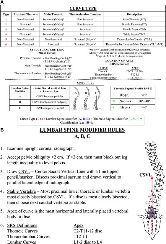 Classification of Operative Adolescent Idiopathic