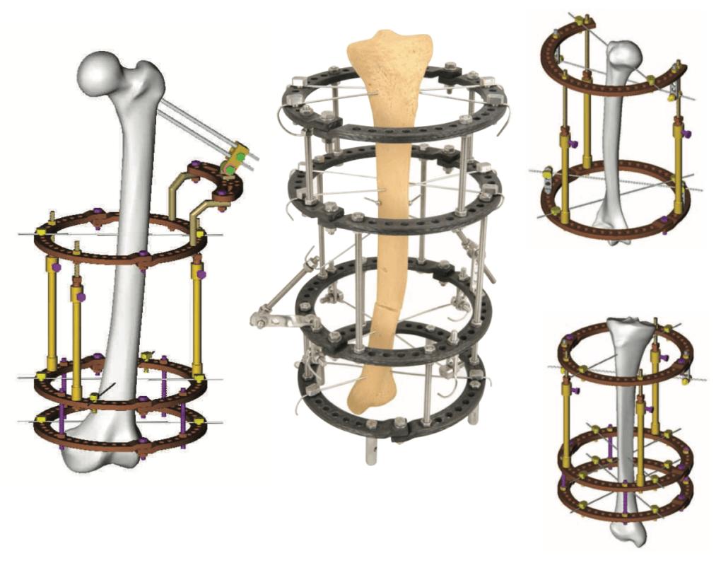 orthopromed ilizarov external fixator
