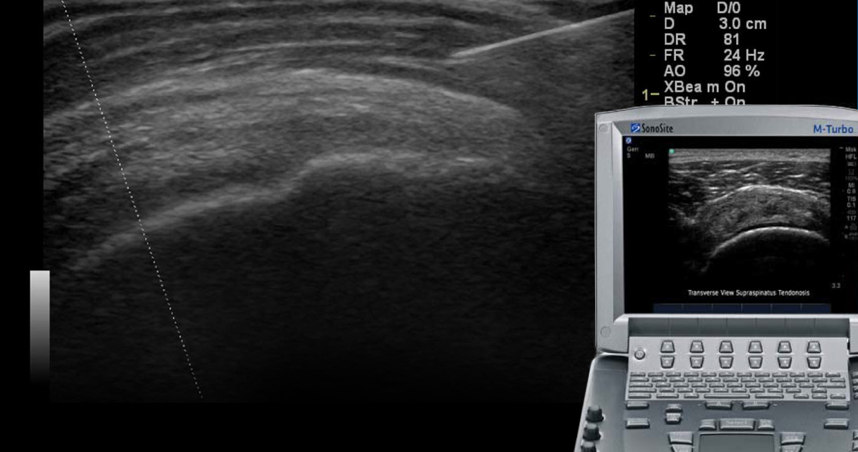 Hip Physical Ultrasound Therapy