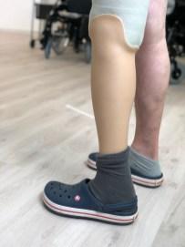 prothèse tibiale