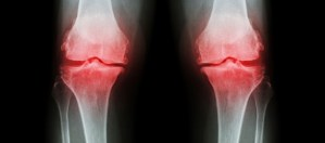 Physical Therapy for Osteoporosis Patients