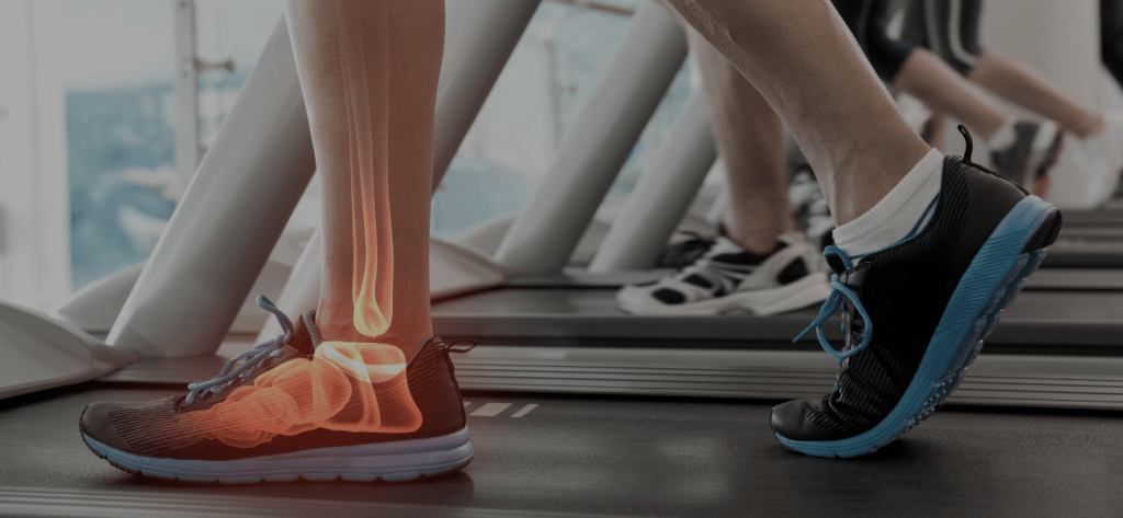 Physical Therapy Bone Health