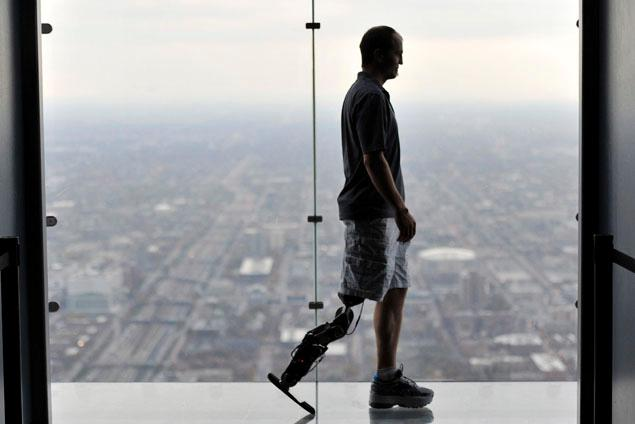 Chicago Doctors Unveil First Thought-Controlled Bionic Leg