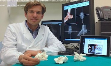 Photo of Italian Doctor Uses 3D-printed Bone Replicas to Aid Severe Bone Fracture Surgeries