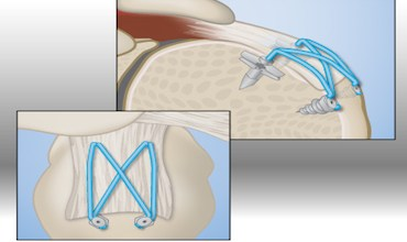 Photo of KFx Medical Corporation Announces Another License of Its Knotless Double Row Patents