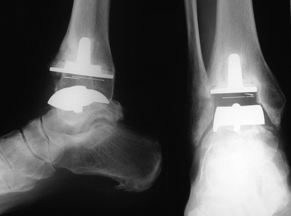 how to become eligible for a joint replacement