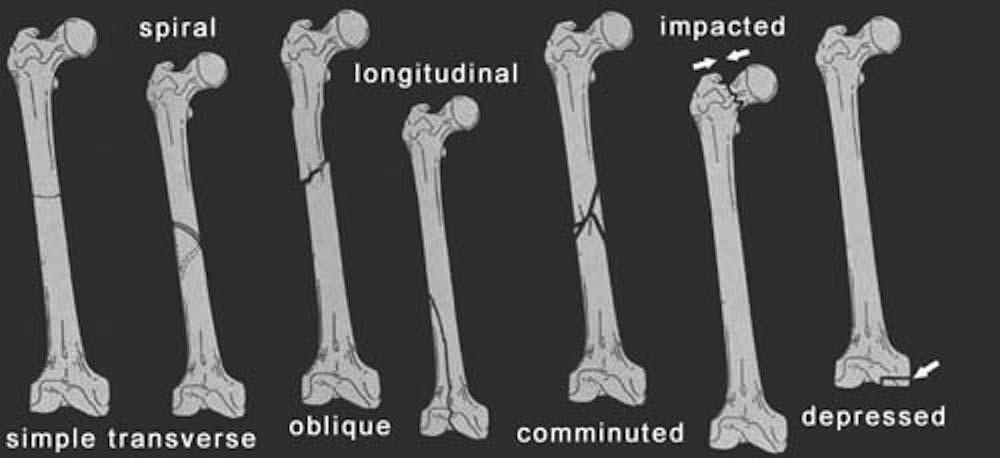 Bmp 7 Versus Bmp 2 For The Treatment Of Long Bone Nonunion