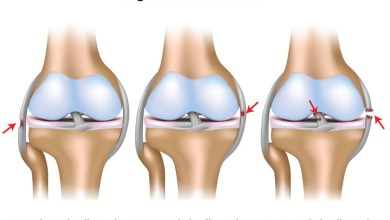 Photo of ACL/PCL PRESERVING KNEE SET TO SURGE IN JOINT REPLACEMENT WORLD