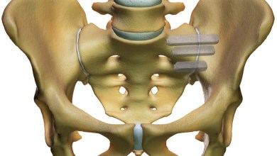 Photo of ISASS to CMS: Update RVUs for minimally invasive sacroiliac joint surgery