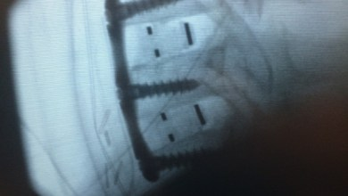 Photo of First human implantation by North American surgeon of new spinal implant