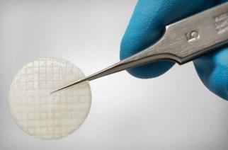 AlloSource's New Cartilage Repair Product, ProChondrix, Receives Patent