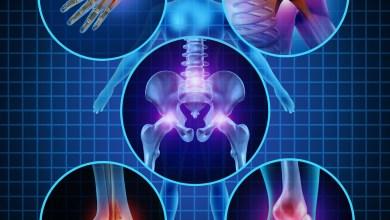 Photo of Worldwide Orthopedic Trauma Devices Market Trend and Forecast 2020