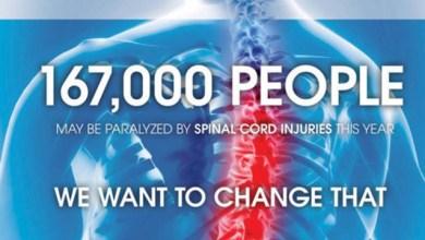Photo of InVivo Therapeutics touts case study in 1st spine scaffold implant