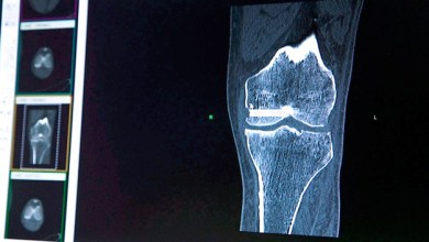 Photo of Designing Joint Implants That Enhance Patient Satisfaction