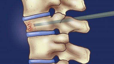 Photo of Vertebroplasty helps reduce acute pain among patients with spinal fractures