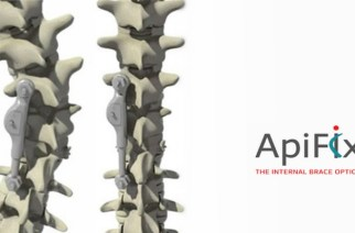 ApiFix® Ltd. Reaches 100-Patient Milestone with the Expansion of European Clinical Sites to Treat Children and Adolescents who have Scoliosis with its Minimally Invasive, Non-Fusion Device