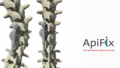 Photo of ApiFix® Ltd. Reaches 100-Patient Milestone with the Expansion of European Clinical Sites to Treat Children and Adolescents who have Scoliosis with its Minimally Invasive, Non-Fusion Device