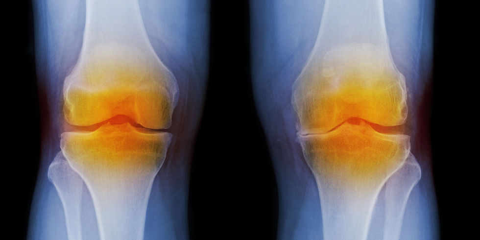 The single protein injection which could replace the need for knee surgery for osteoarthritis sufferers