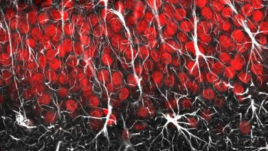 Photo of Regeneration of spinal nerve cells boosted