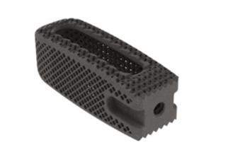 K2M Expands 3D-Printed MIS CASCADIA™ Lateral Interbody System Featuring Lamellar 3D Titanium Technology™