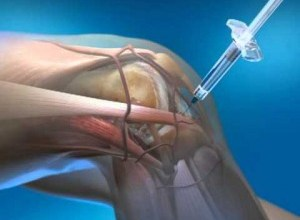 Photo of Nanoparticle injections may be future of osteoarthritis treatment