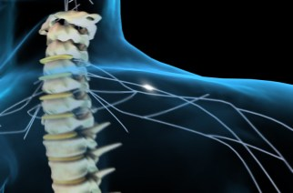 US $5 million granted to spinal cord injury robotics research project
