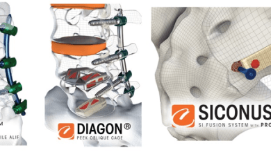 Photo of Camber Spine Technologies Announces 510(k) Clearance For Their Siconus(TM) SI Joint Fixation System