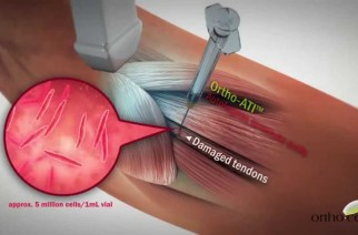 Orthocell Announces Collaboration with Johnson & Johnson Innovation