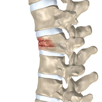 Global Vertebral Compression Fractures Devices Market Expected to Reach $1,109 Million by 2022