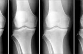 Nearly one-third of osteoarthritis-related costs incurred the year prior to knee replacement surgery are for non-recommended treatments