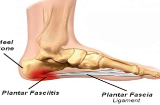 AMNIOX Study Confirms Benefits of CLARIX FLO for Plantar Fasciitis