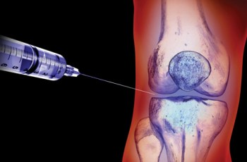 Knee osteoarthritis: Steroid injections offer no benefit, study suggests