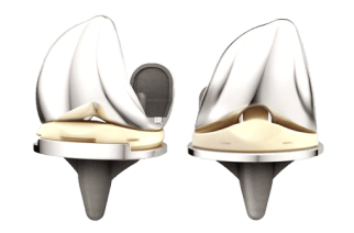 ATTUNE® Knee System Four-Year Revision Rate is Lower Than Total Knee Class, According to New & Independent Joint Registry Data