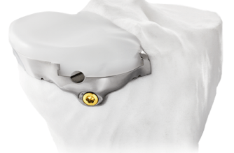 Bodycad Receives EU Product Notification Confirmation for Personalized Unicompartmental Knee System