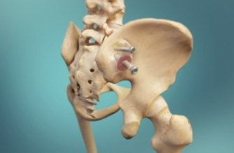 Zyga Receives New Patent Allowances for SImmetry® Sacroiliac Joint Fusion System