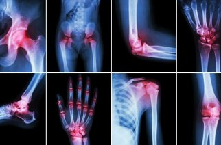Extremity Reconstruction Market : By Product Type, Market, Players and Regions-Forecast to 2025