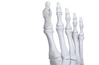 Paragon 28® announces launch of JAWS™ Nitinol Staple System to address fracture and osteotomy fixation of the foot