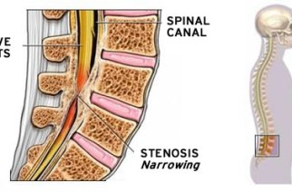 If You Have Lumbar Spinal Stenosis, There's an Exciting New Option