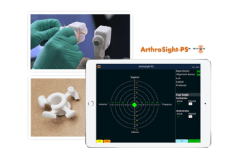 PathPartner Technology Contributes to Arthromeda's Successful Preclinical Study of Arthrosight-PS™ Hip Alignment Navigation System