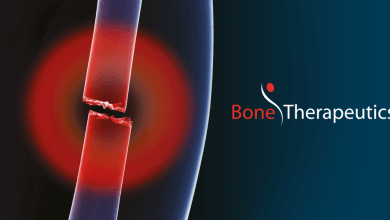 Photo of Bone Therapeutics appoints Jean-Luc Vandebroek as Chief Financial Officer