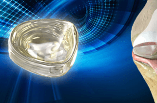 100th Patient Enrolled in Clinical Trials for Active Implants' NUsurface® Meniscus Implant