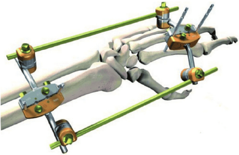 brazilian orthopedic trauma devices market in depth The market dynamics section includes rri's analysis on key trends, drivers, restraints, opportunities and macro-economic factors influencing the growth of the global orthopedic imaging equipment market and key regulations for medical devices.