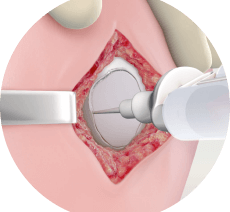 Peninsula Orthopaedic Associates Announces First MACI Implant in the Region for the Treatment of Cartilage Defects of the Knee