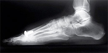 Photo of Proven 10-year Excellence in HemiCAP® Joint Replacement for Hallux Rigidus
