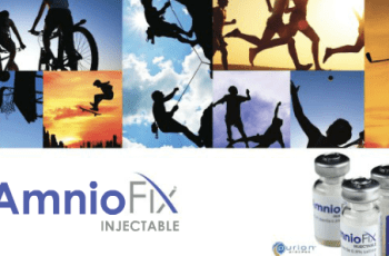 MiMedx Files With The FDA To Initiate The Company's Investigational New Drug Phase 2 Clinical Trial For Osteoarthritis Of The Knee